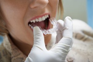 טיפולי שיניים בחול