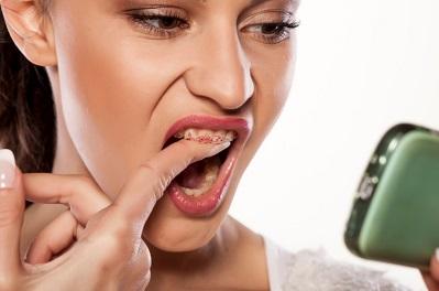 השלמת שן או החלפת שיניים איך זה עובד?